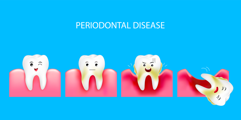 EverSmile-Dentistry_Sterling-Virginia_How-to-Prevent-Gum-Disease