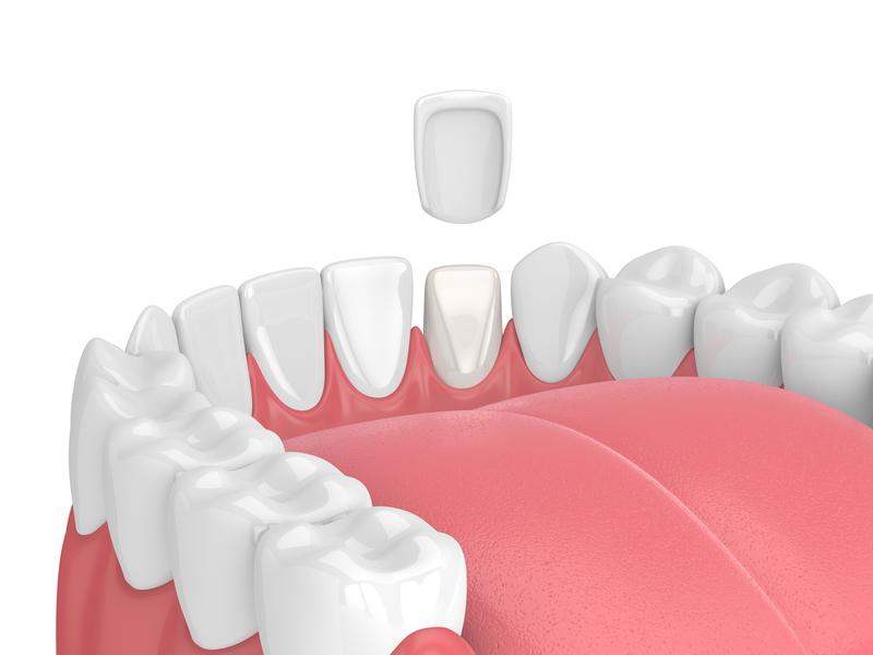 EverSmile-Dentistry_Sterling-Virginia_What_Are_Porcelain_Veneers