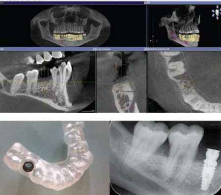 EverSmile Dentistry's New Guided Implant Surgery Technology