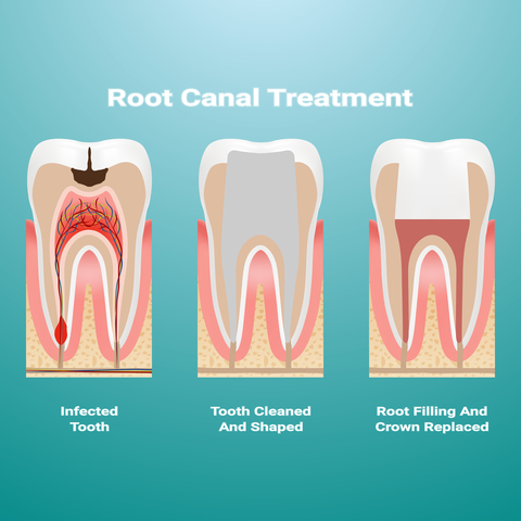 How Do You Know You Need a Root Canal?