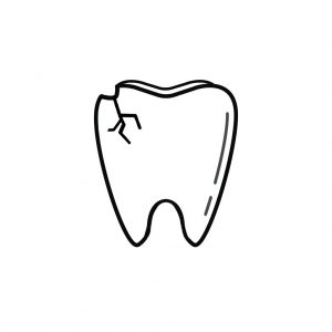 Sterling VA Dentist | I Chipped a Tooth! What Can I Do?